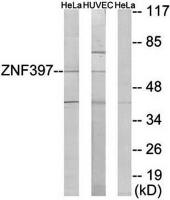 Western blot analysis of extracts from HeLa cells and HUVEC cells using ZNF397 antibody