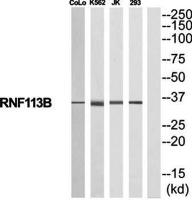 Western blot analysis of extracts from COLO205/K562/Jurkat/293 cells using RNF113B antibody