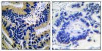 Immunohistochemical analysis of formalin-fixed and paraffin-embedded human lung carcinoma tissue using Caspase 3 (Cleaved-Asp175) antibody