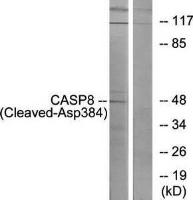Western blot analysis of extracts from 293 cells using Caspase 8 (Cleaved-Asp384) antibody