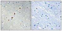 Immunohistochemical analysis of formalin-fixed and paraffin-embedded human brain tissue using ZNF596 antibody