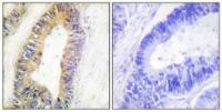 Immunohistochemical analysis of formalin-fixed and paraffin-embedded human colon carcinoma tissue using ZNF638 antibody