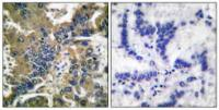 Immunohistochemical analysis of formalin-fixed and paraffin-embedded human lung carcinoma tissue using Caspase 1 (Cleaved-Asp210) antibody